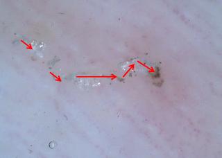 """最先端部に""""虫""""が見られ、そこを摘まんで顕微鏡で観察。"""